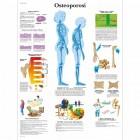 SC1003 - Poster osteoporosi