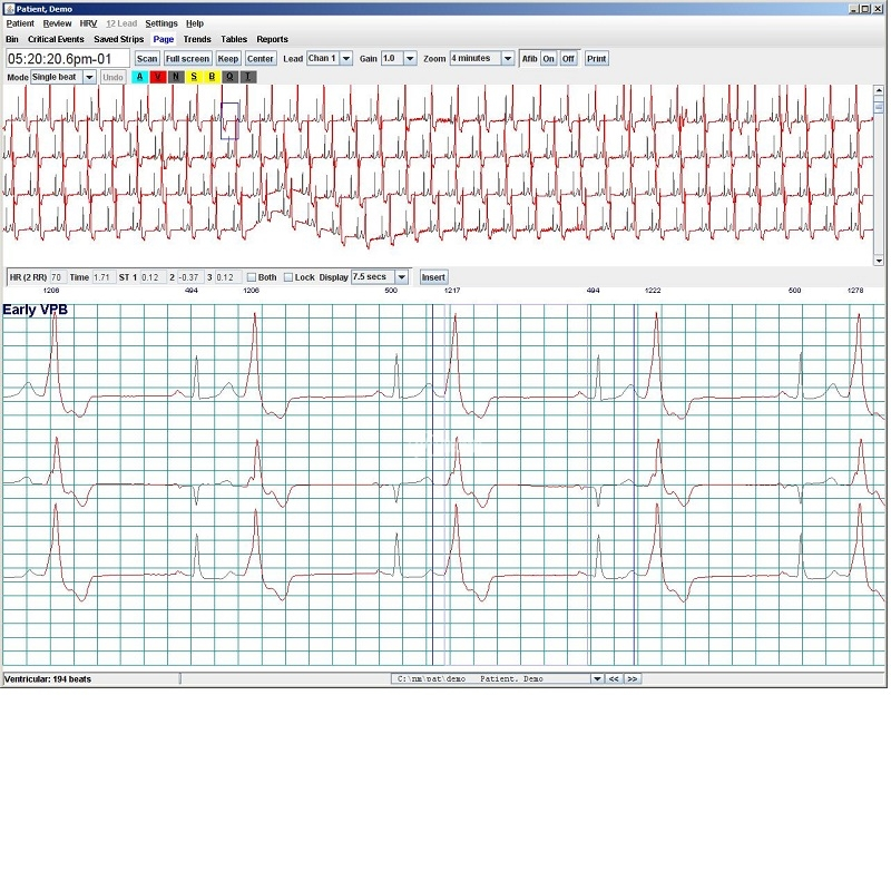 Software per Holter ECG NorthEast